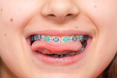 Braces-for-Kids