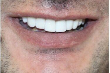 تركيب اسنان بعد